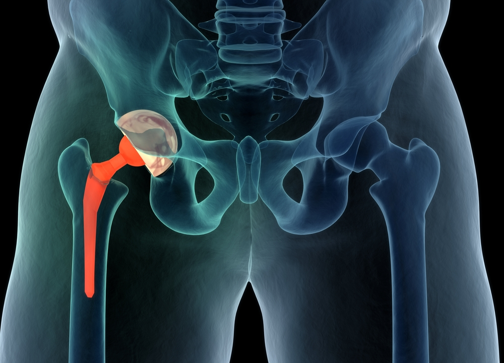 The scoop on anterior total hip replacement surgery